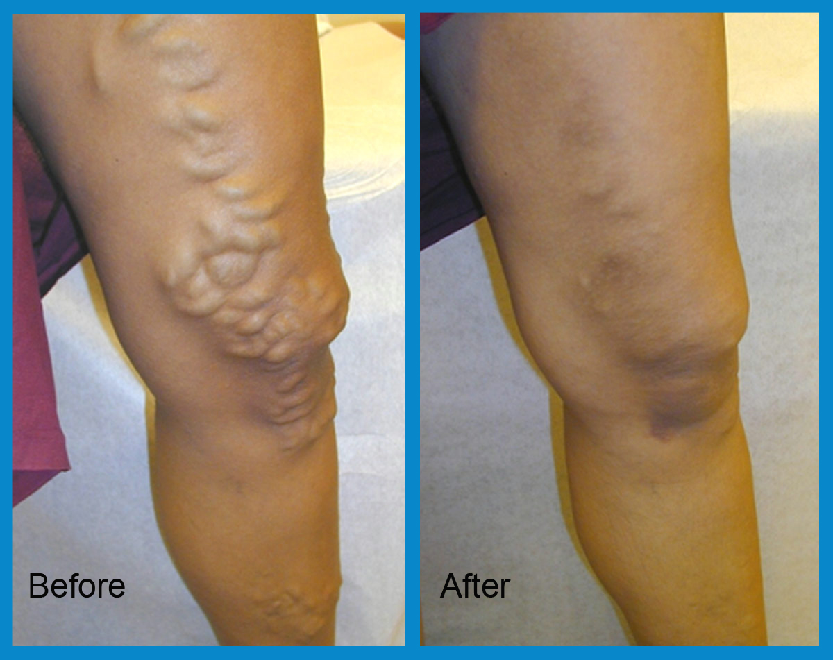endovenous laser treatment before and after